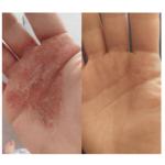 Killing off Eczema